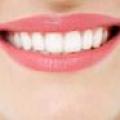 【健康】亲,你的牙齿怎么样?